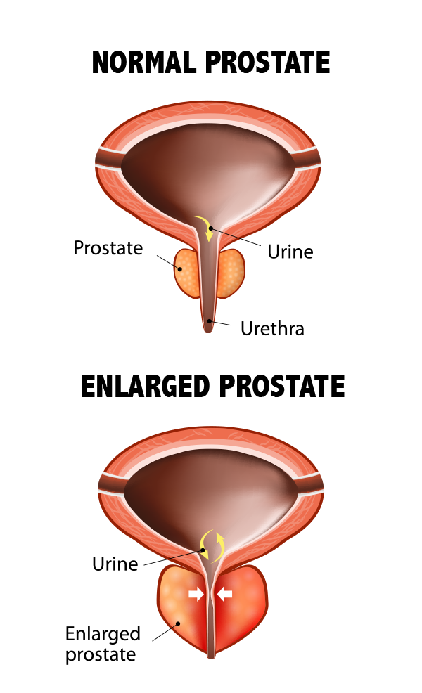 conditions treated, bph, treatment for bph, enlarged prostate, treatment for enlarged prostate